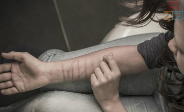 Аутоагрессия: что это такое, ее виды, симптомы и лечение