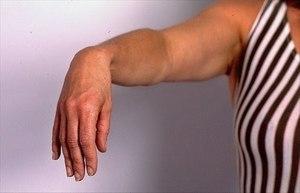 Дергается мышца на руке: с чем это связано и как лечить