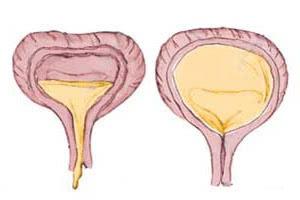 Нейрогенный мочевой пузырь причины