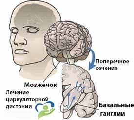 Нейроциркуляторная дистония: как проявляется и лечится
