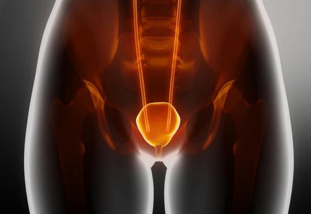 Нейрогенный мочевой пузырь: что это, его симптомы и лечение